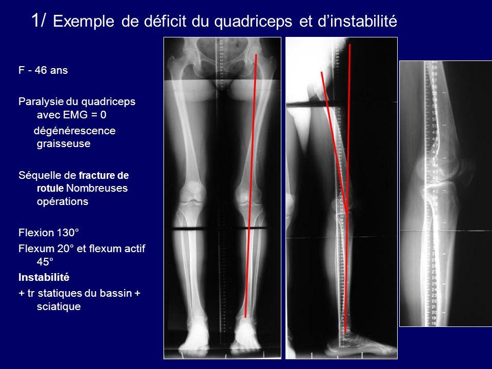 1/ Exemple de déficit du quadriceps et d'instabilité