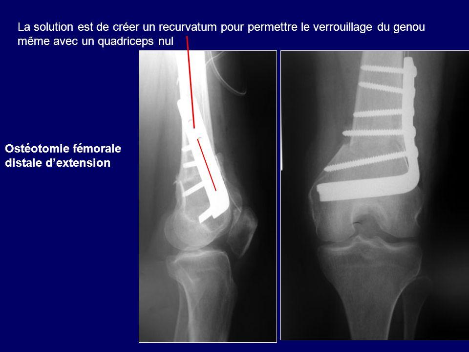 La solution est de créer un recurvatum pour permettre le verrouillage du genou même avec un quadriceps nul
