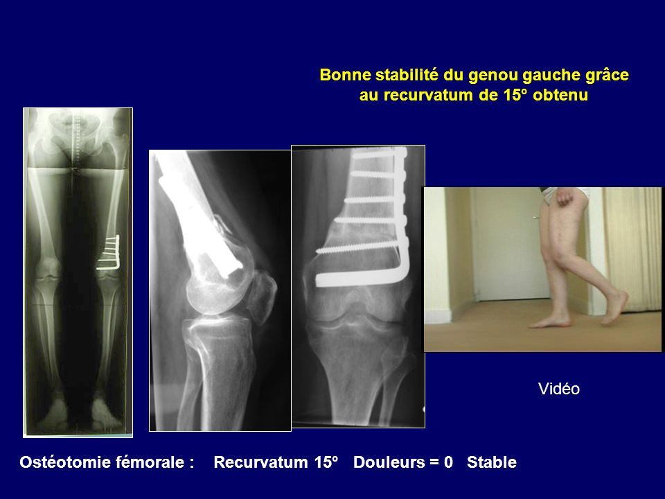 Bonne stabilité du genou gauche grâce au recurvatum de 15° obtenu