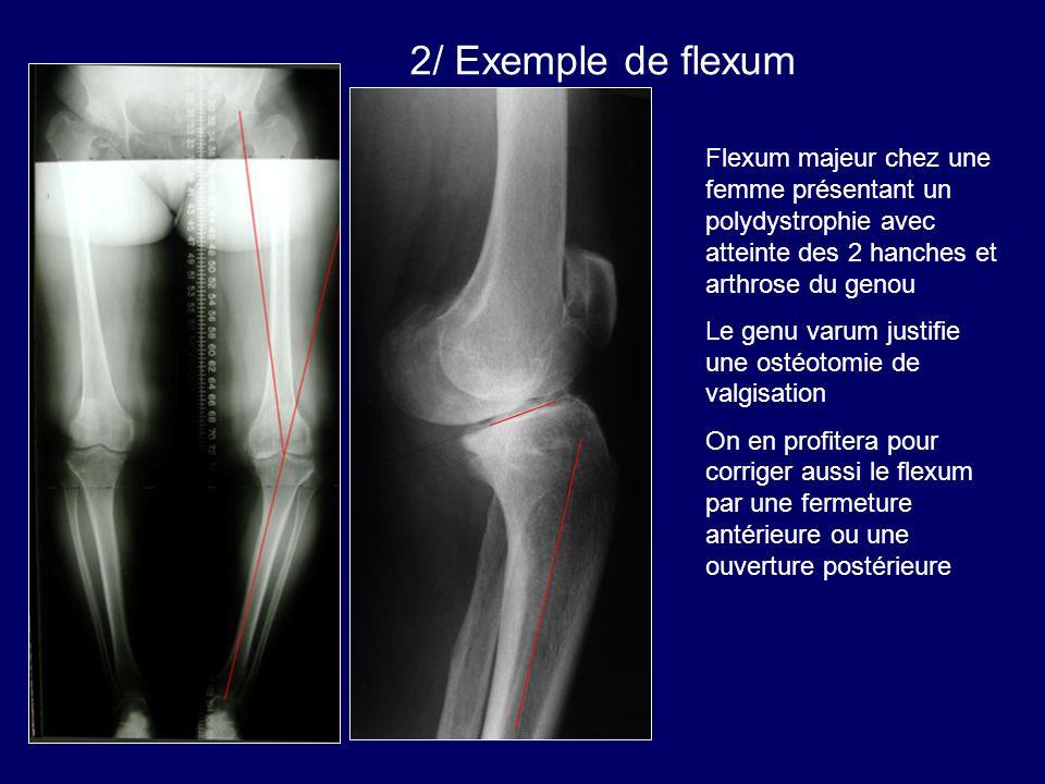 v 2/ Exemple de flexum. Flexum majeur chez une femme présentant un polydystrophie avec atteinte des 2 hanches et arthrose du genou.