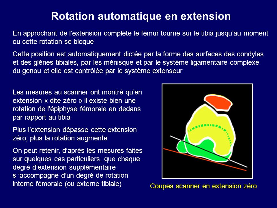 Rotation automatique en extension