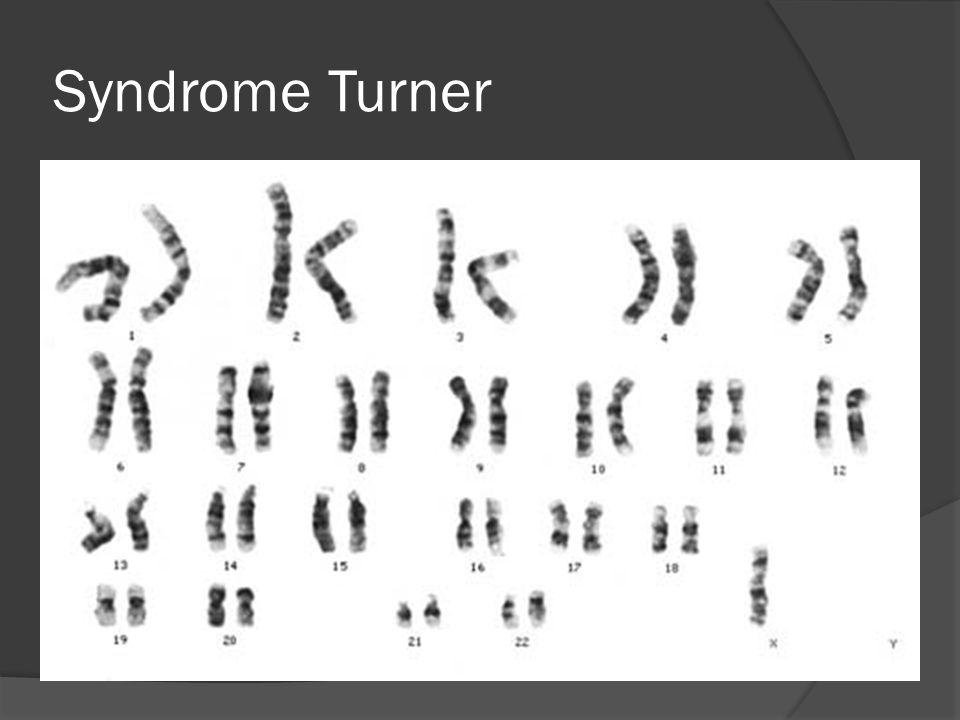 Syndrome Turner