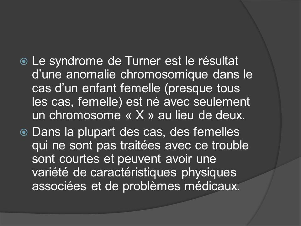Le syndrome de Turner est le résultat d'une anomalie chromosomique dans le cas d'un enfant femelle (presque tous les cas, femelle) est né avec seulement un chromosome « X » au lieu de deux.