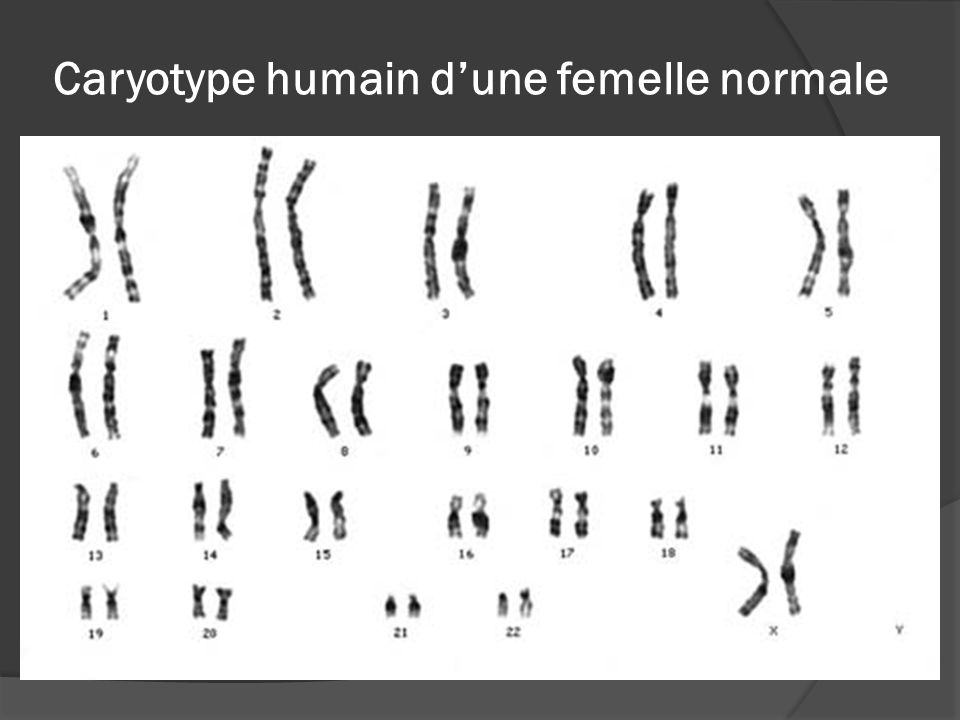 Caryotype humain d'une femelle normale