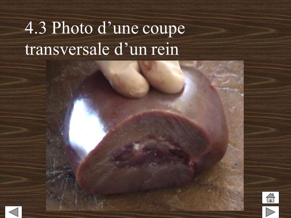 4.3 Photo d'une coupe transversale d'un rein