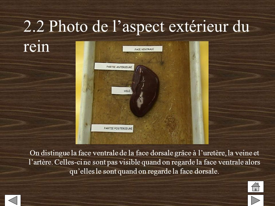 2.2 Photo de l'aspect extérieur du rein