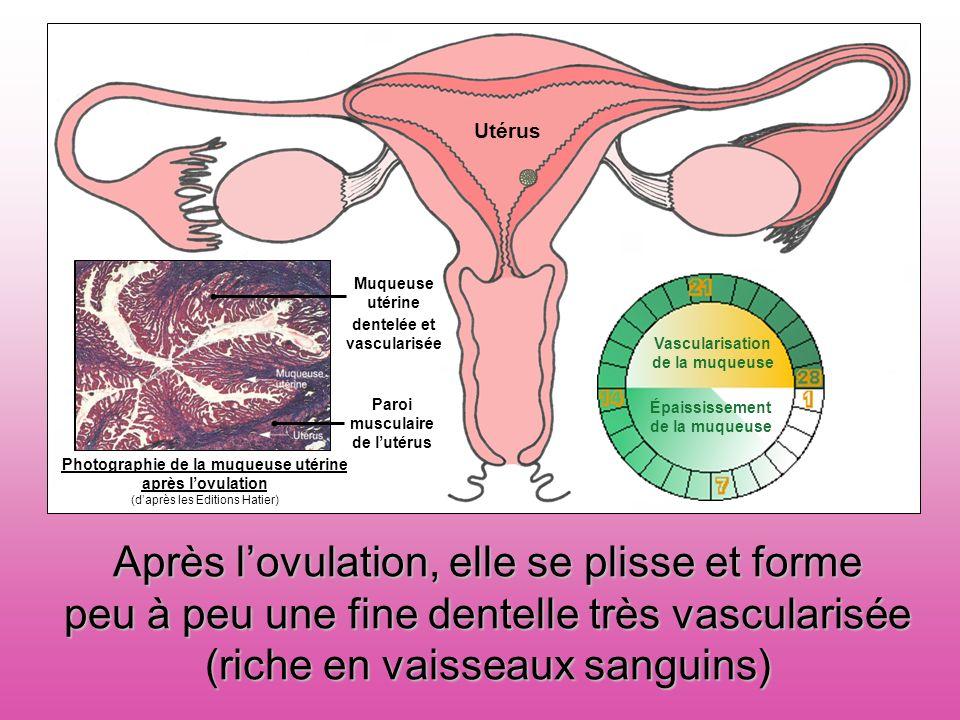 Photographie de la muqueuse utérine au début de cycle utérin