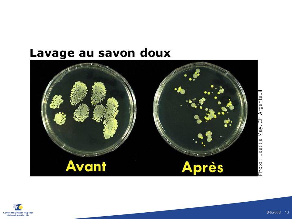 Lavage au savon doux Photo : Laetitia May, CH Argenteuil