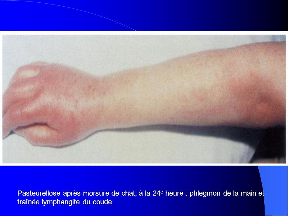 Pasteurellose après morsure de chat, à la 24e heure : phlegmon de la main et traînée lymphangite du coude.