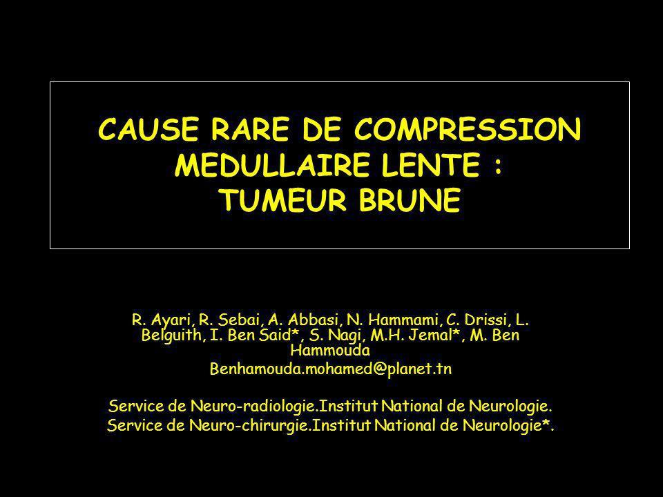 CAUSE RARE DE COMPRESSION MEDULLAIRE LENTE : TUMEUR BRUNE