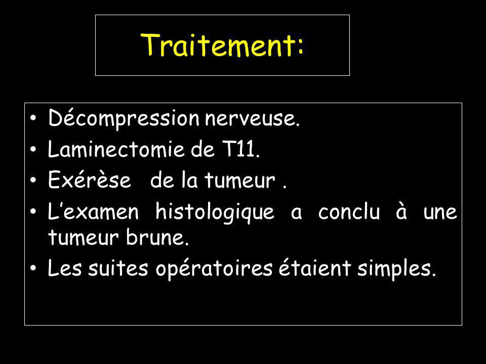 Traitement: Décompression nerveuse. Laminectomie de T11.