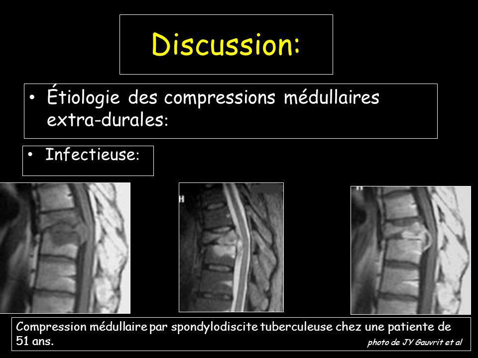 Discussion: Étiologie des compressions médullaires extra-durales:
