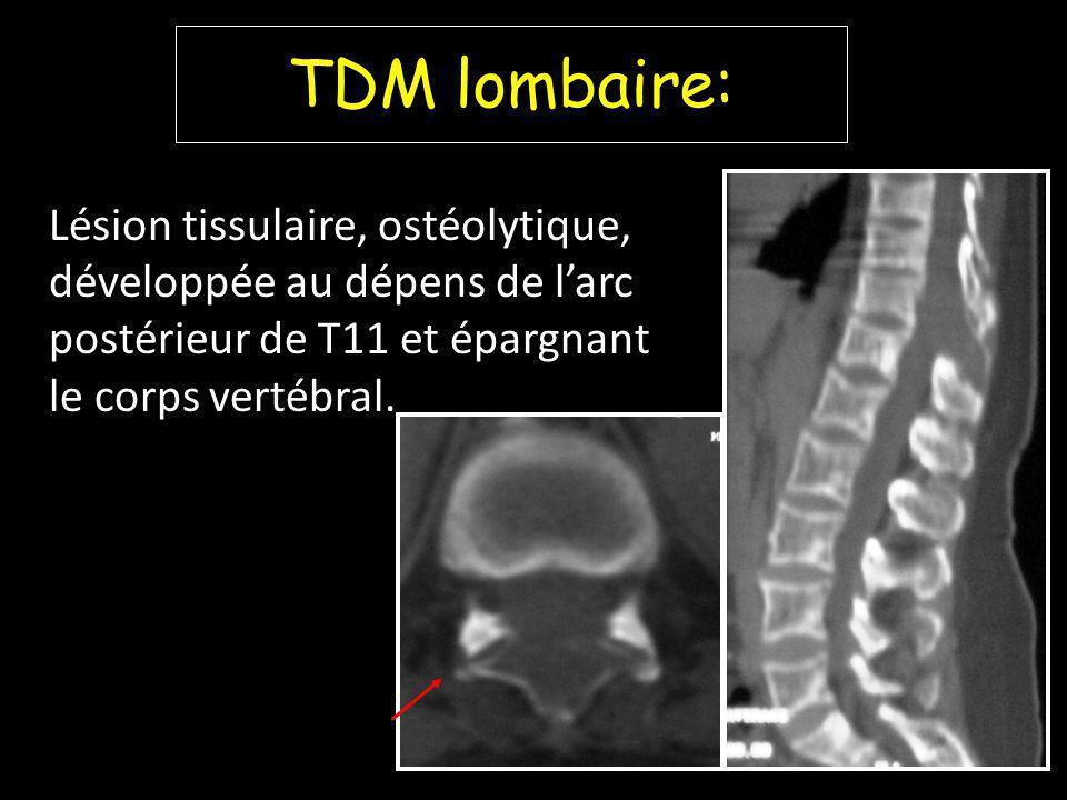TDM lombaire: Lésion tissulaire, ostéolytique, développée au dépens de l'arc postérieur de T11 et épargnant le corps vertébral.