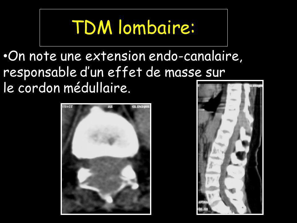 TDM lombaire: On note une extension endo-canalaire, responsable d'un effet de masse sur.