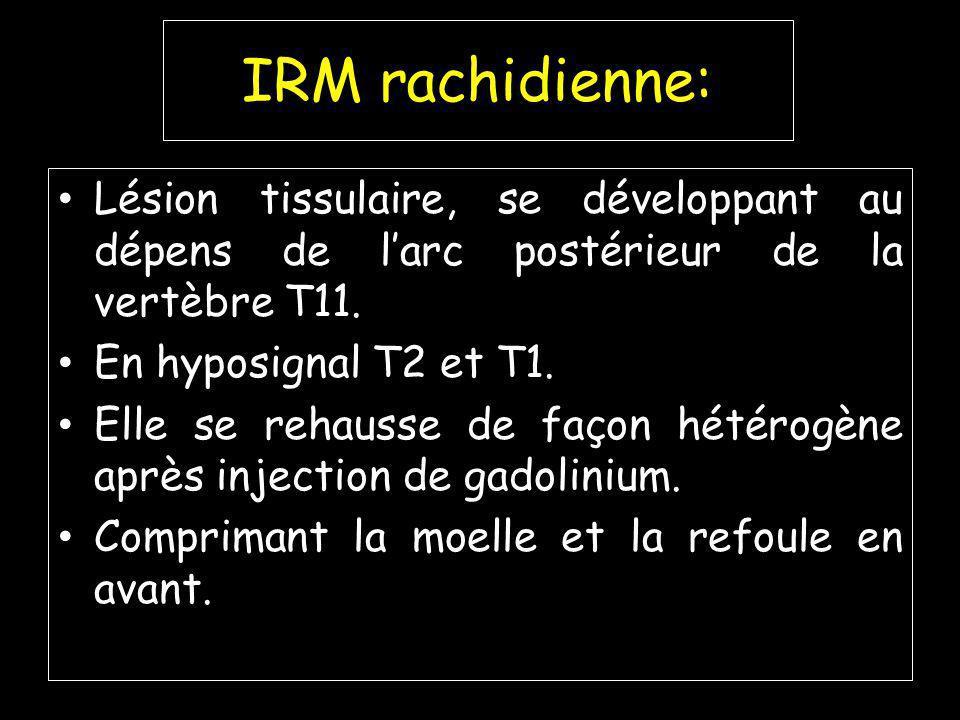 IRM rachidienne: Lésion tissulaire, se développant au dépens de l'arc postérieur de la vertèbre T11.