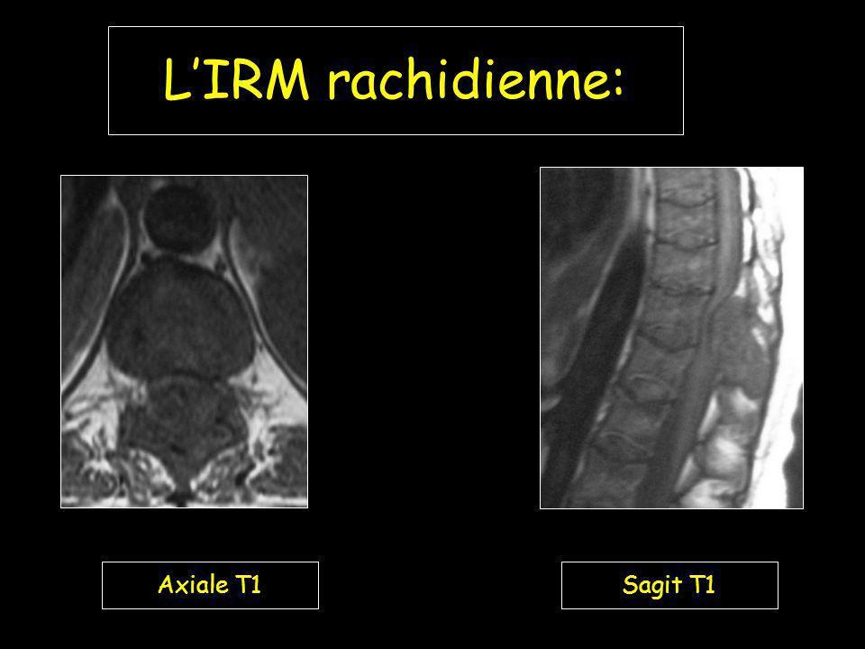 L'IRM rachidienne: Axiale T1 Sagit T1