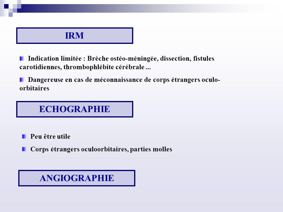 IRM ECHOGRAPHIE ANGIOGRAPHIE