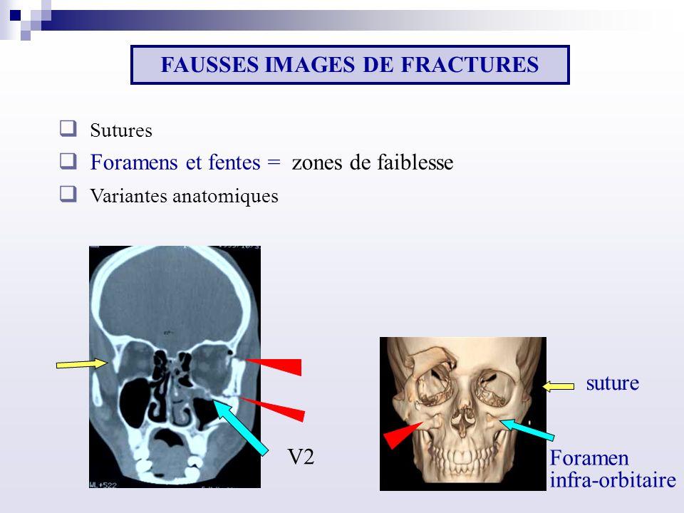 FAUSSES IMAGES DE FRACTURES