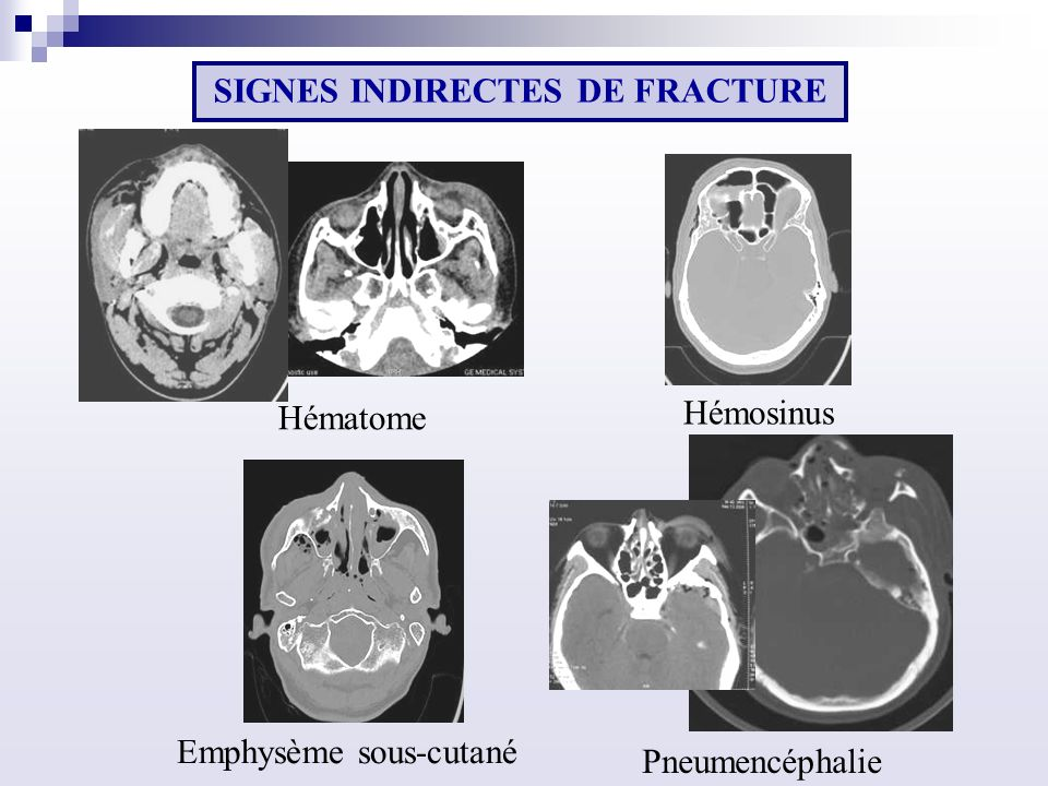 SIGNES INDIRECTES DE FRACTURE