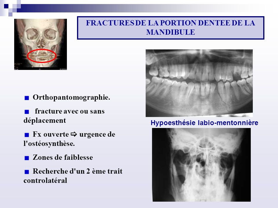 FRACTURES DE LA PORTION DENTEE DE LA MANDIBULE