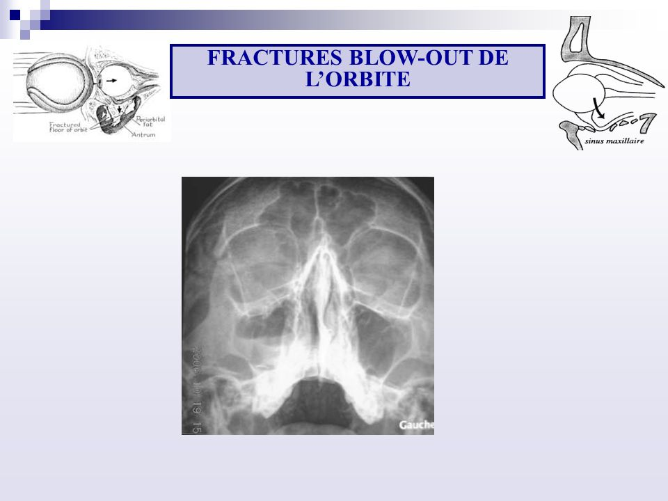 FRACTURES BLOW-OUT DE L'ORBITE