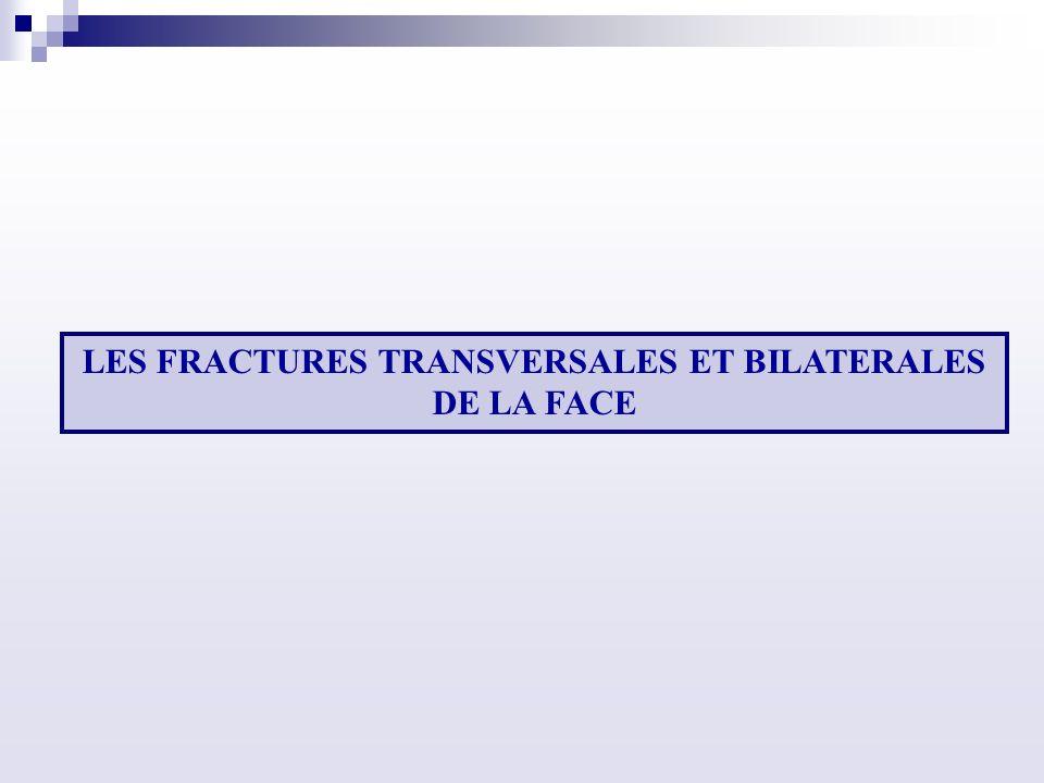 LES FRACTURES TRANSVERSALES ET BILATERALES