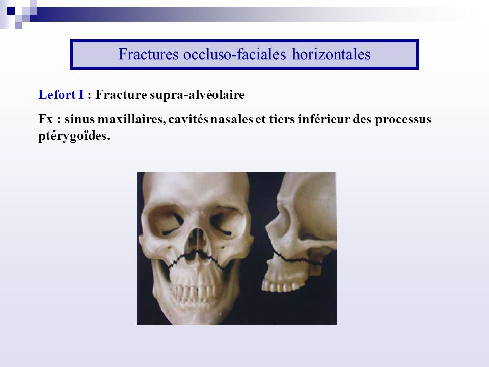 Fractures occluso-faciales horizontales