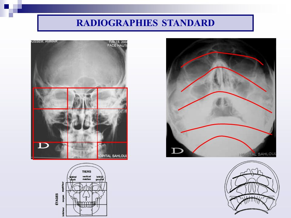 RADIOGRAPHIES STANDARD