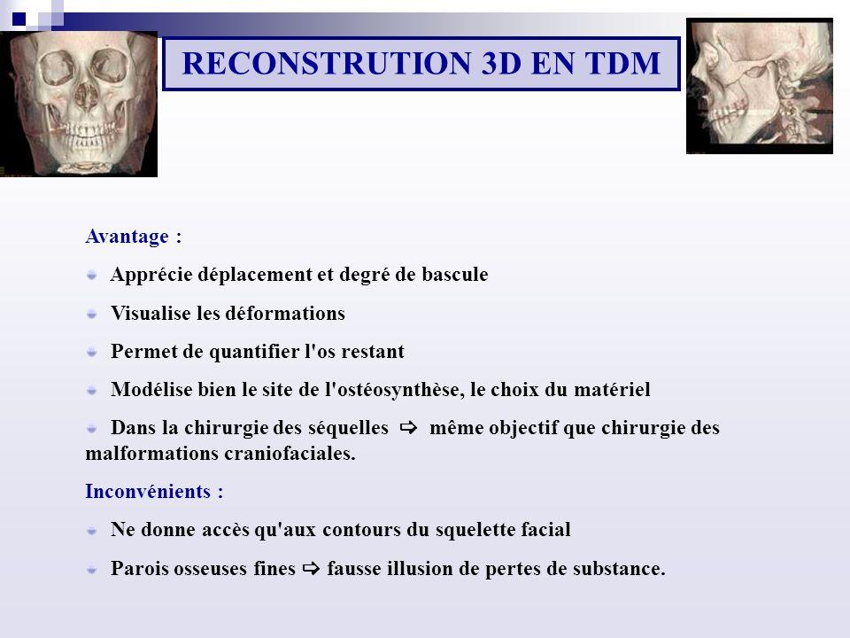 RECONSTRUTION 3D EN TDM Avantage :