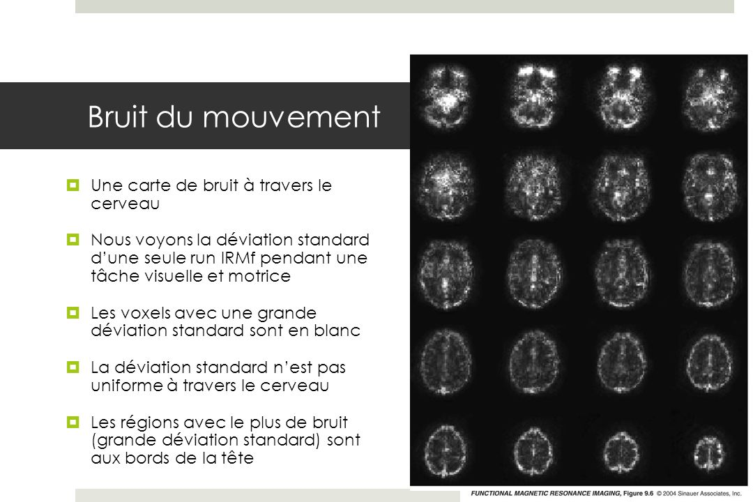 Bruit du mouvement Une carte de bruit à travers le cerveau