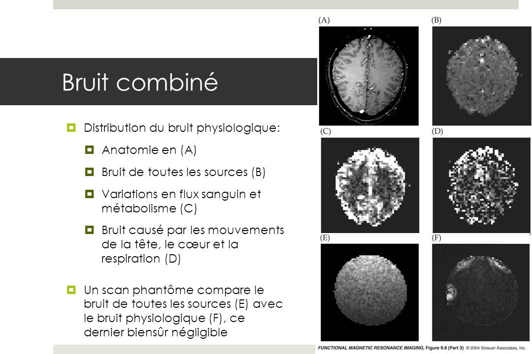 Bruit combiné Distribution du bruit physiologique: Anatomie en (A)