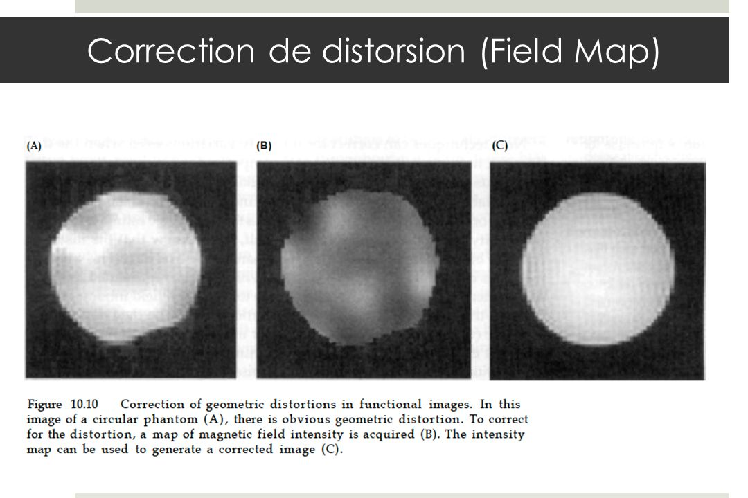 Correction de distorsion (Field Map)
