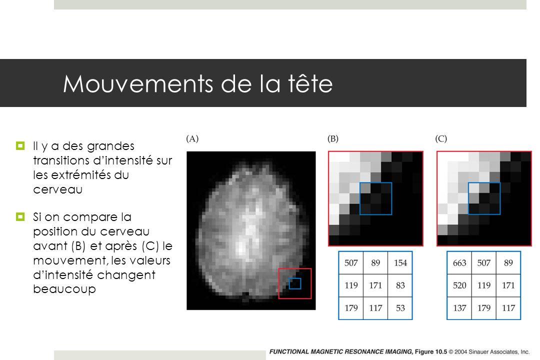Mouvements de la tête Il y a des grandes transitions d'intensité sur les extrémités du cerveau.