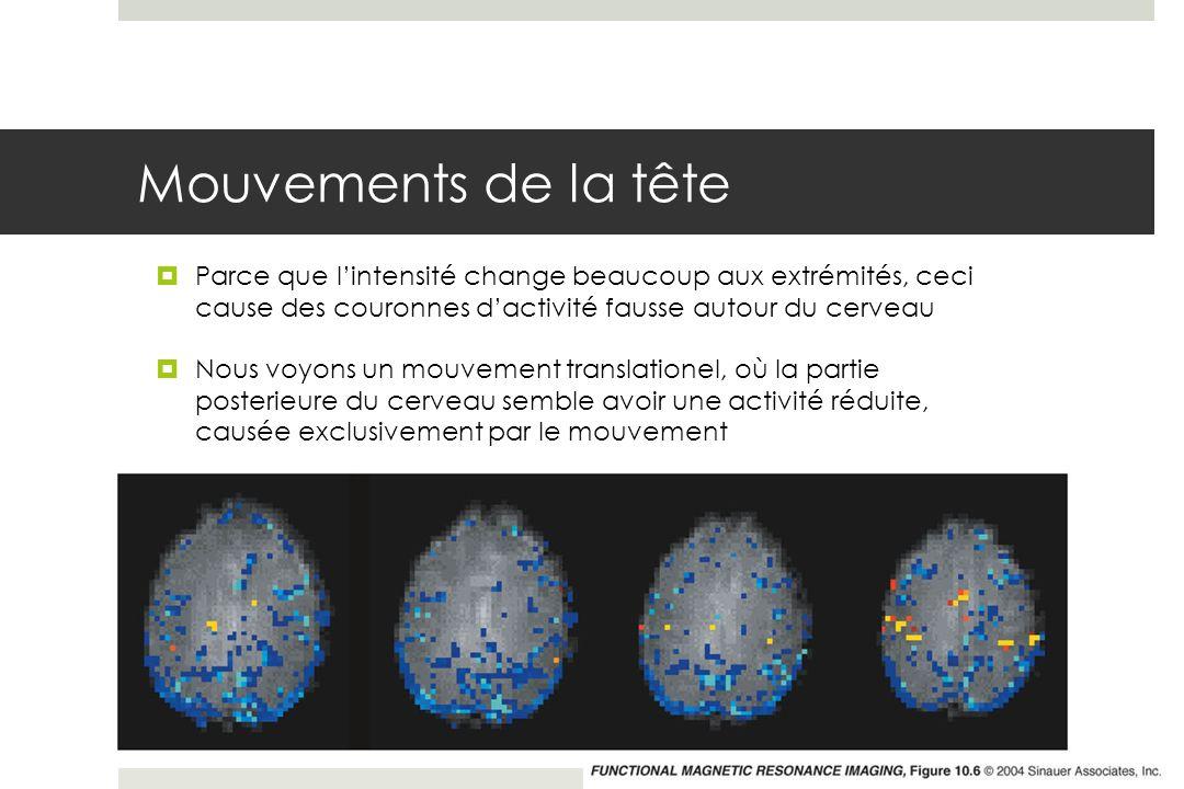 Mouvements de la tête Parce que l'intensité change beaucoup aux extrémités, ceci cause des couronnes d'activité fausse autour du cerveau.