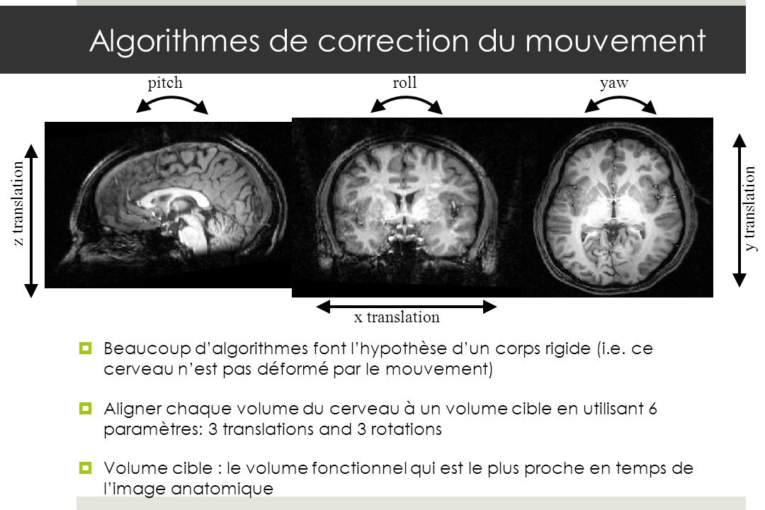 Algorithmes de correction du mouvement
