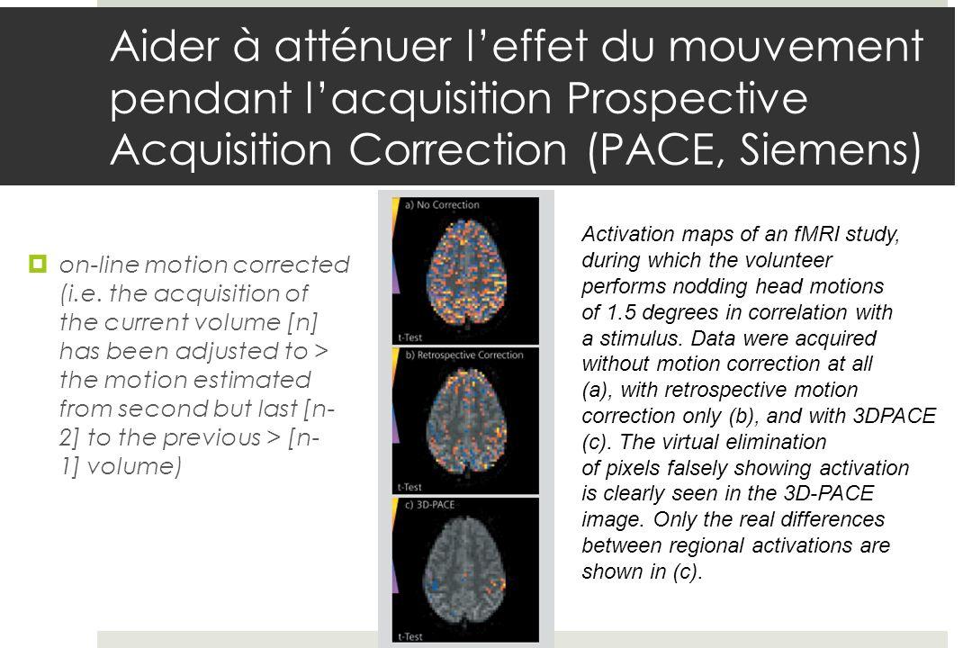 Aider à atténuer l'effet du mouvement pendant l'acquisition Prospective Acquisition Correction (PACE, Siemens)