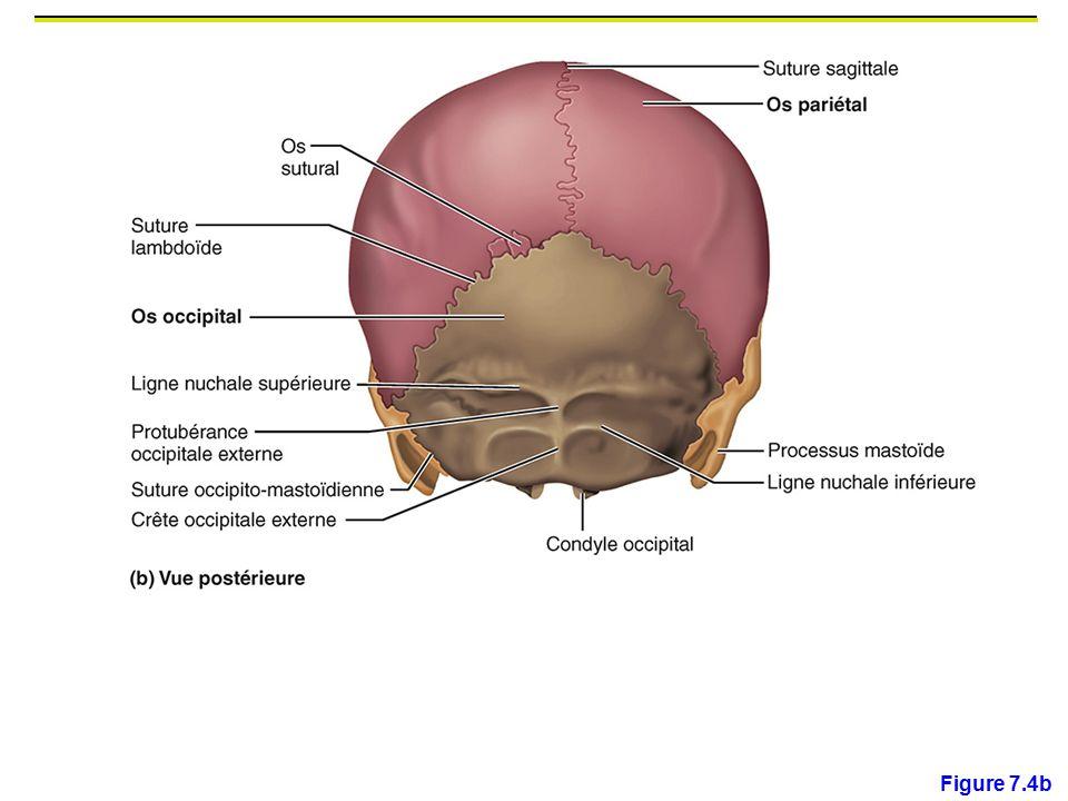 Figure 7.4b