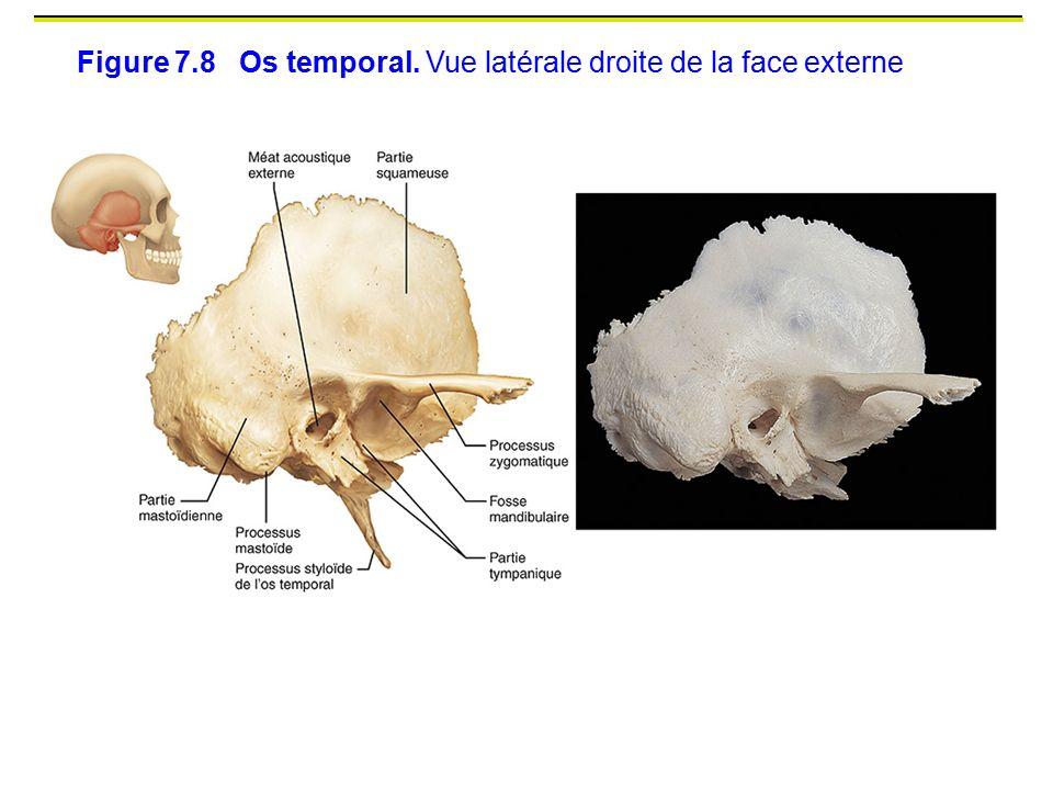 Figure 7.8 Os temporal. Vue latérale droite de la face externe