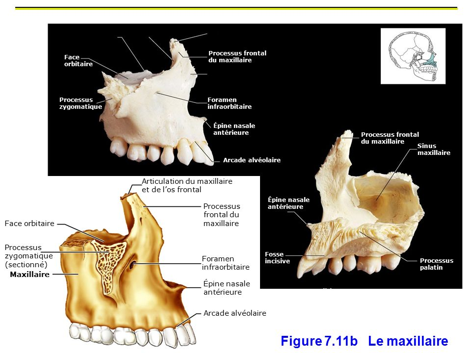 Figure 7.11b Le maxillaire 2 os maxillaire