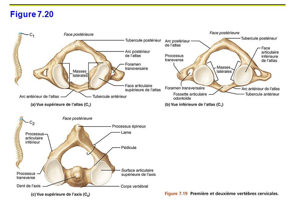Figure 7.20 C1 : atlas. Anneaux osseux sans corps vertbrale (pas de disque entre atlas et os occupitale ou C2)