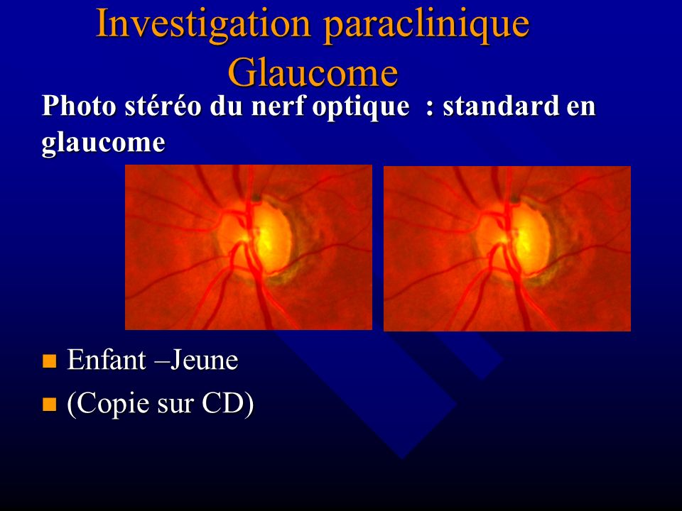 Investigation paraclinique Glaucome