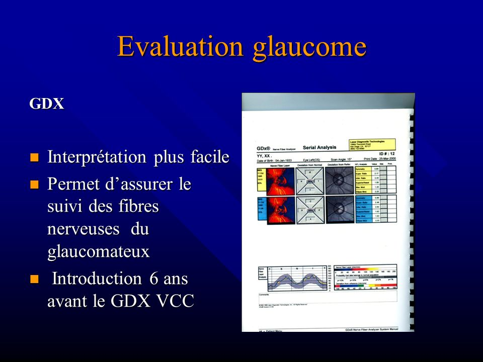 Evaluation glaucome Interprétation plus facile
