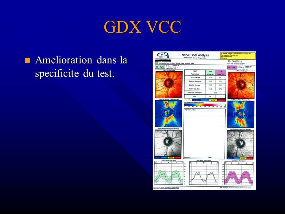 GDX VCC Amelioration dans la specificite du test.