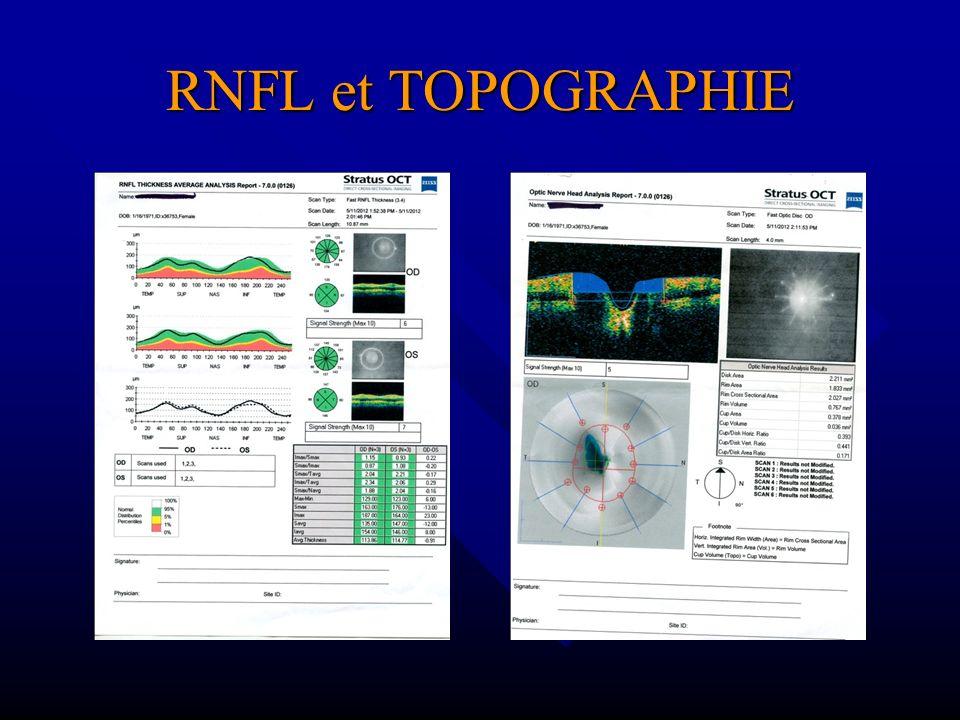RNFL et TOPOGRAPHIE