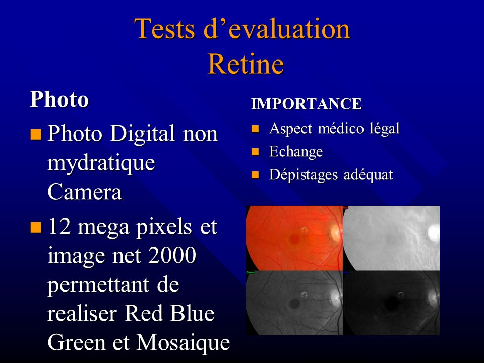 Tests d'evaluation Retine