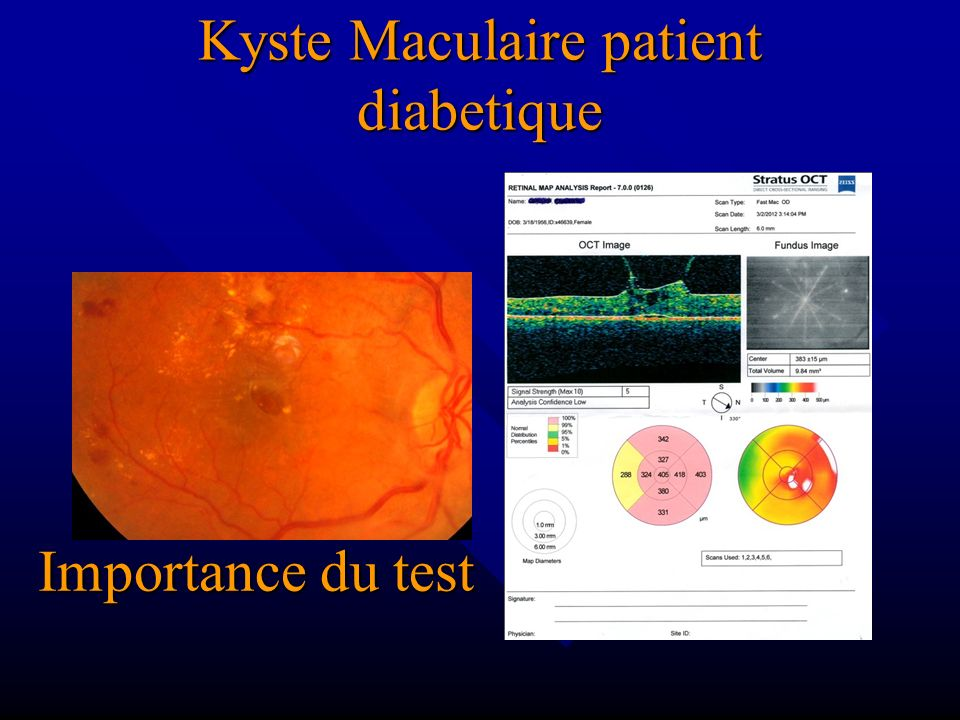Kyste Maculaire patient diabetique
