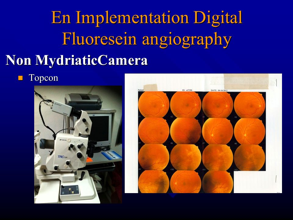 En Implementation Digital Fluoresein angiography