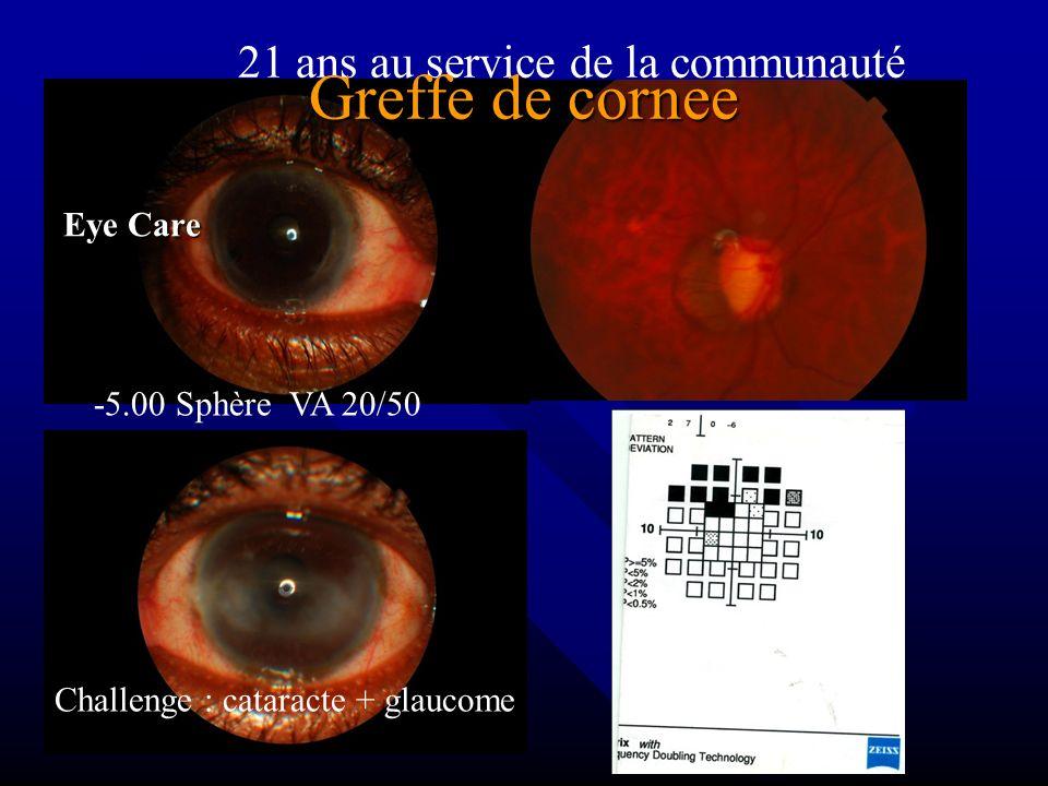 Greffe de cornee 21 ans au service de la communauté Eye Care
