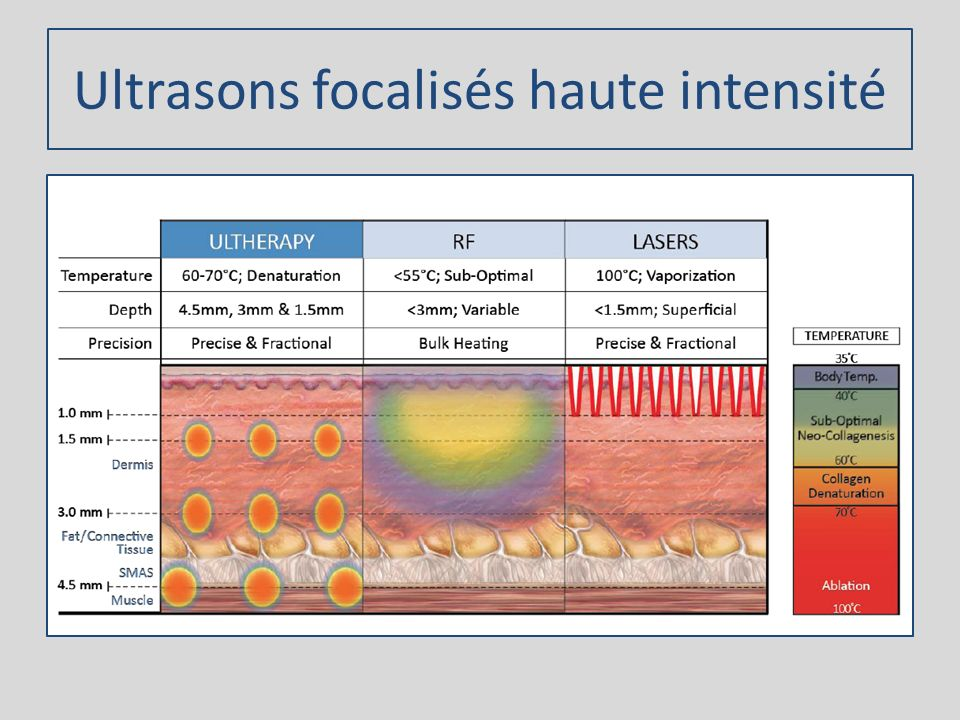 Ultrasons focalisés haute intensité