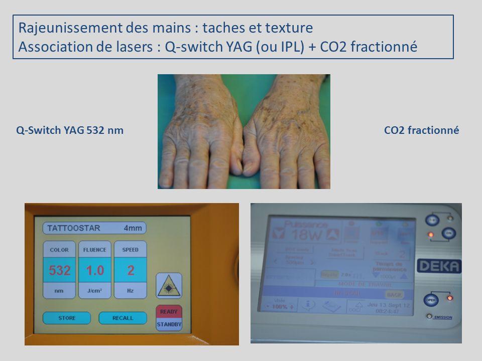Rajeunissement des mains : taches et texture